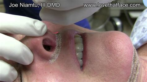 Laser Treatment of Lip Lift Scar by Dr